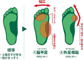 扁平足と外反母趾