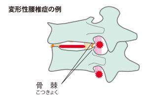 変形性腰椎症
