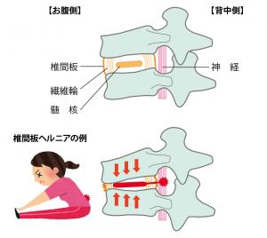腰椎(ようつい)椎間板(ついかんばん)ヘルニア