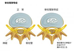 脊柱管(せきちゅうかん)狭窄症(きょうさくしょう)