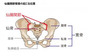 仙腸関節(せんちょうかんせつ)障害